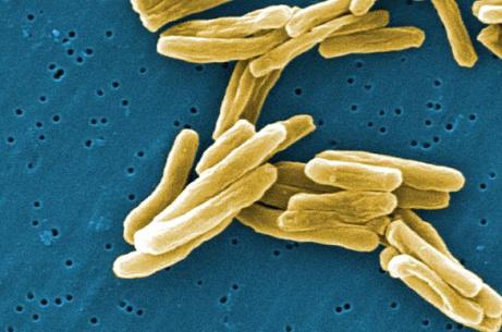 TB under the microscope