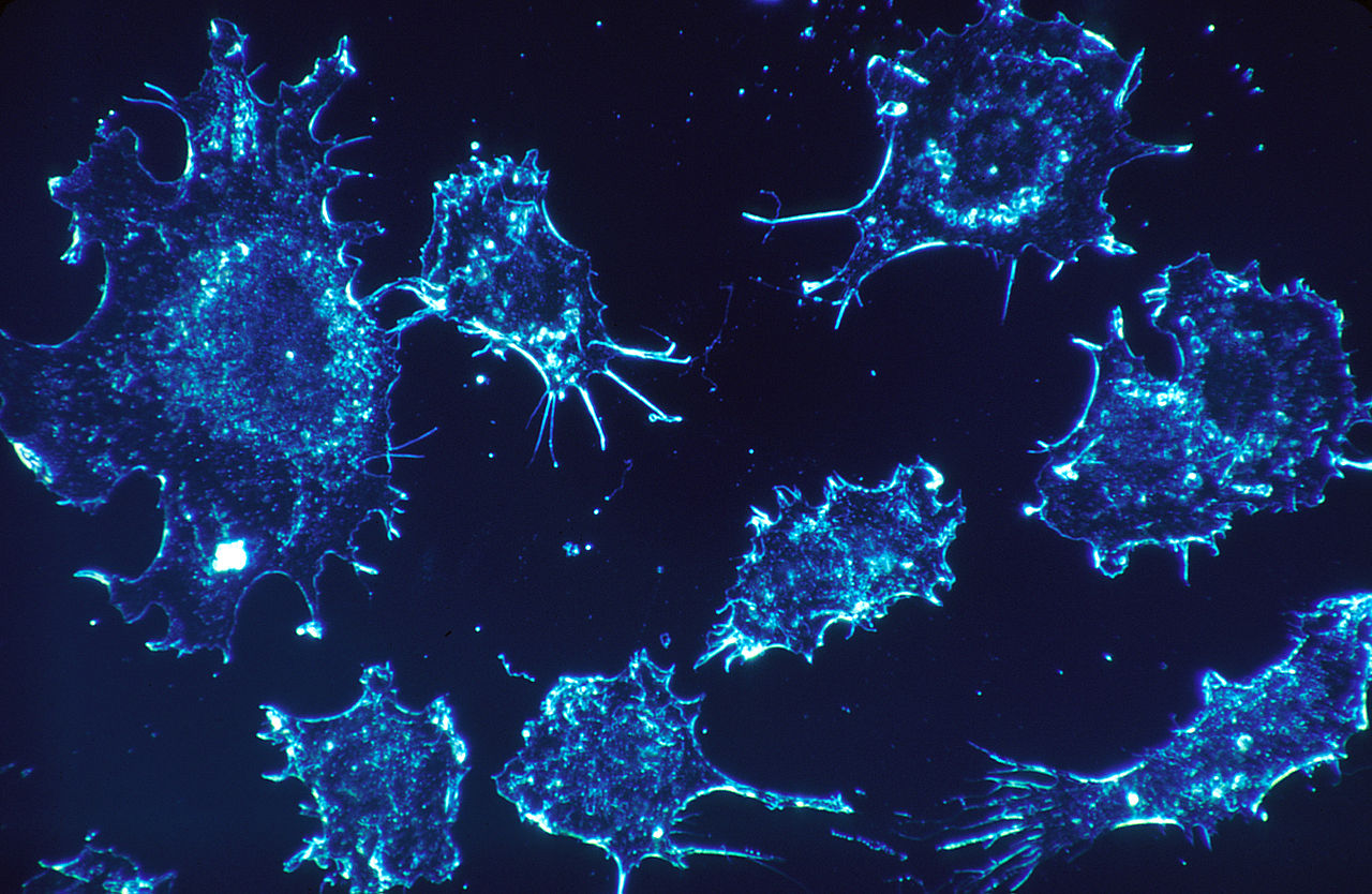 Tackling cancer with nano-drugs