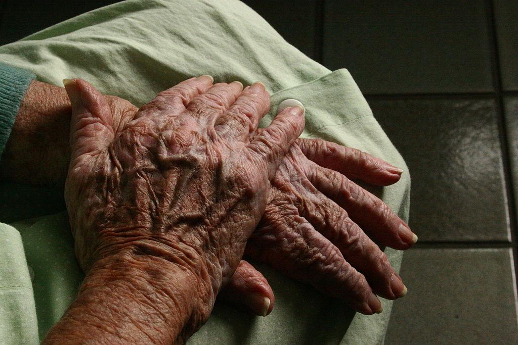 Study finds cancer survivors have lower risk of Alzheimer's