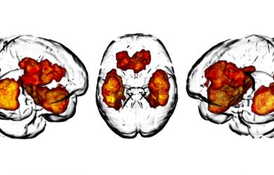 Researchers publish glioma frequency map