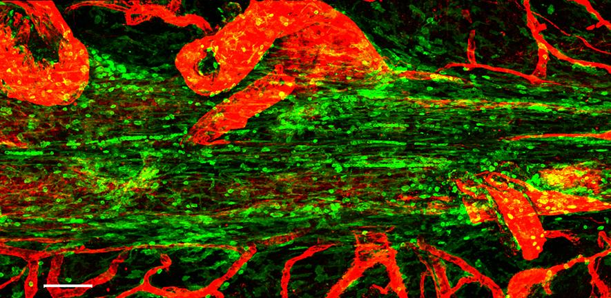 Gut bacteria links to immune responses in the brain